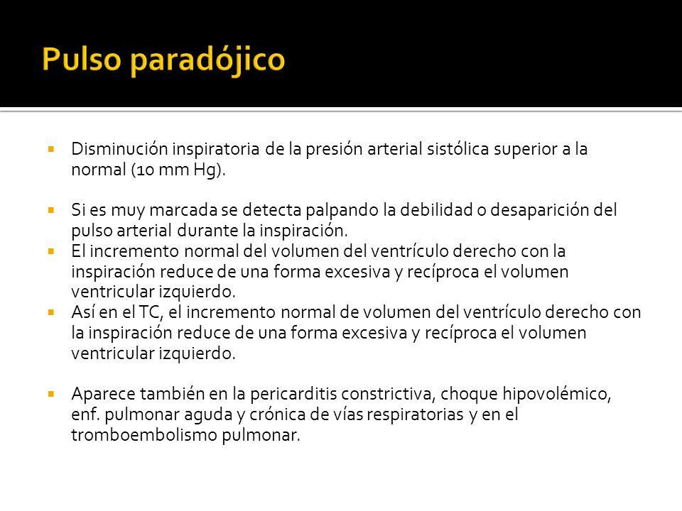 Pulso paradójico Disminución inspiratoria de la presión arterial sistólica superior a la normal (10 mm Hg).