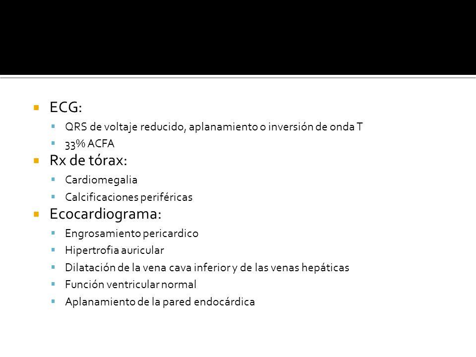 ECG: Rx de tórax: Ecocardiograma:
