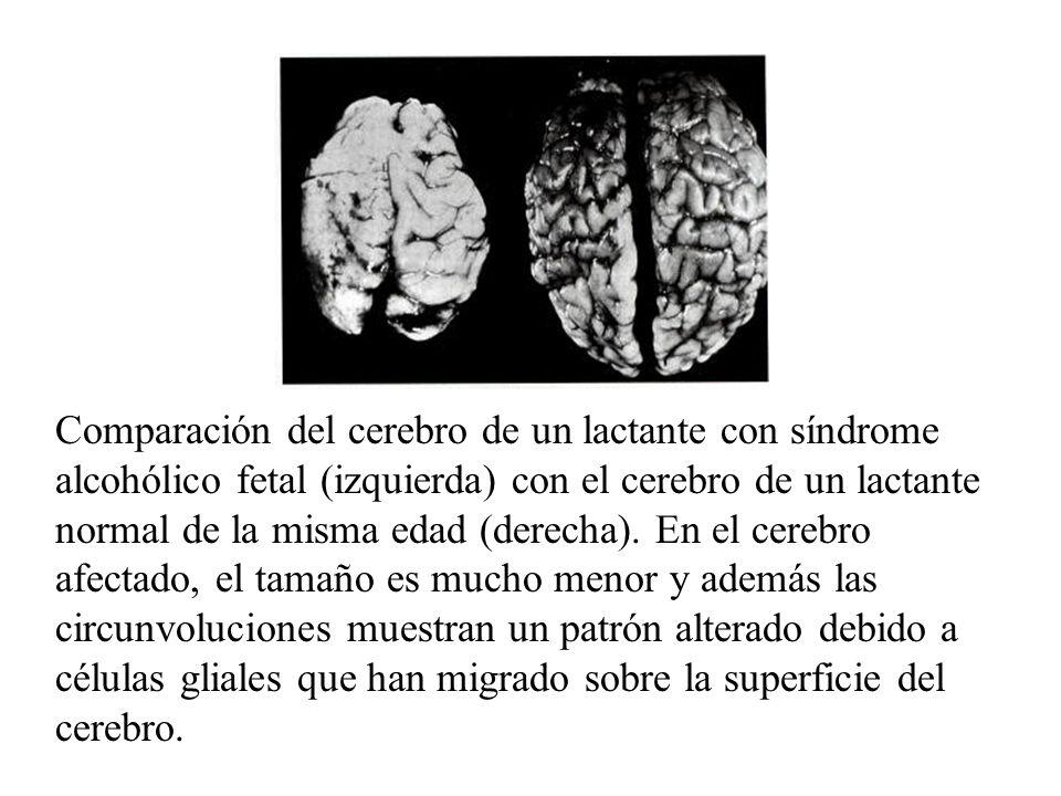 Comparación del cerebro de un lactante con síndrome alcohólico fetal (izquierda) con el cerebro de un lactante normal de la misma edad (derecha).