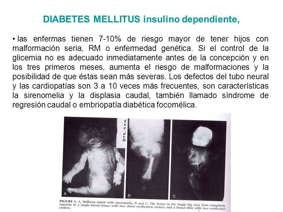DIABETES MELLITUS insulino dependiente,