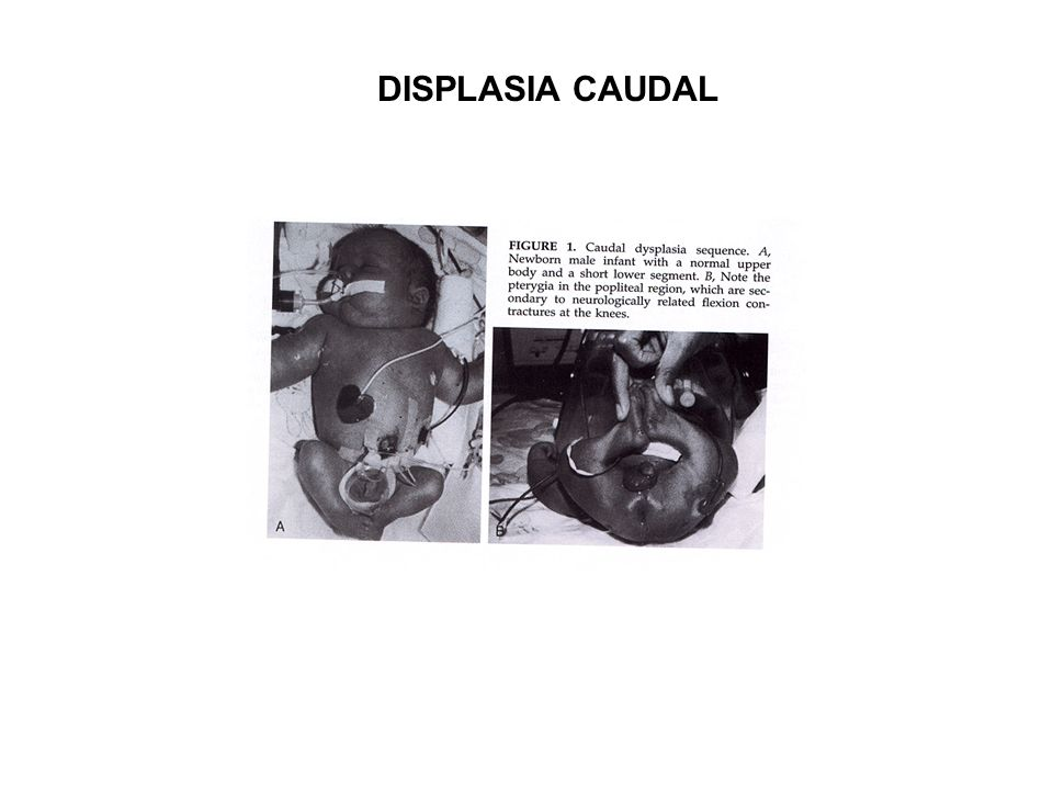 DISPLASIA CAUDAL