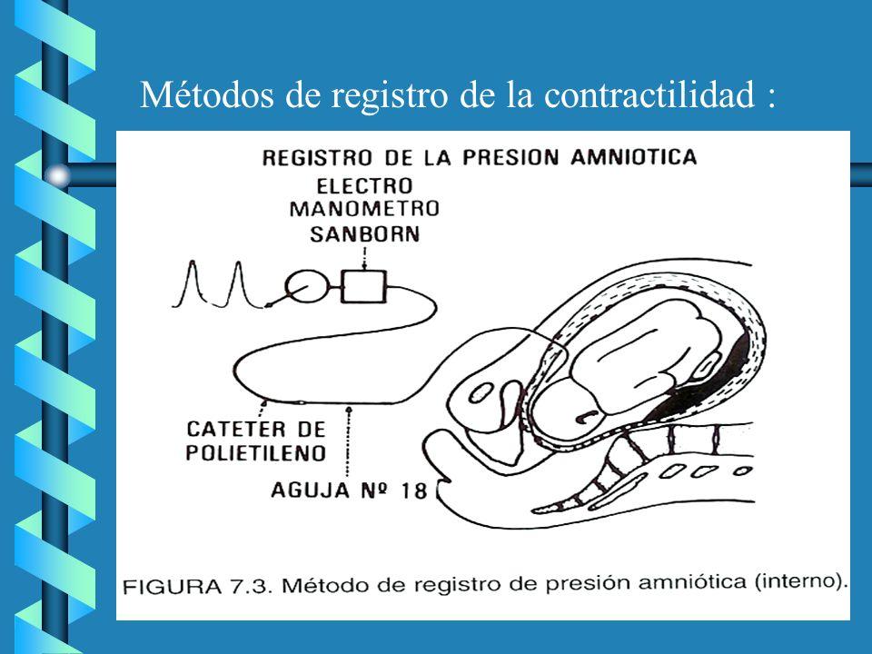 Métodos de registro de la contractilidad :