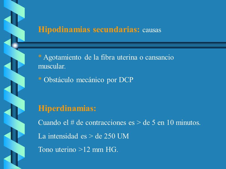 Hipodinamias secundarias: causas