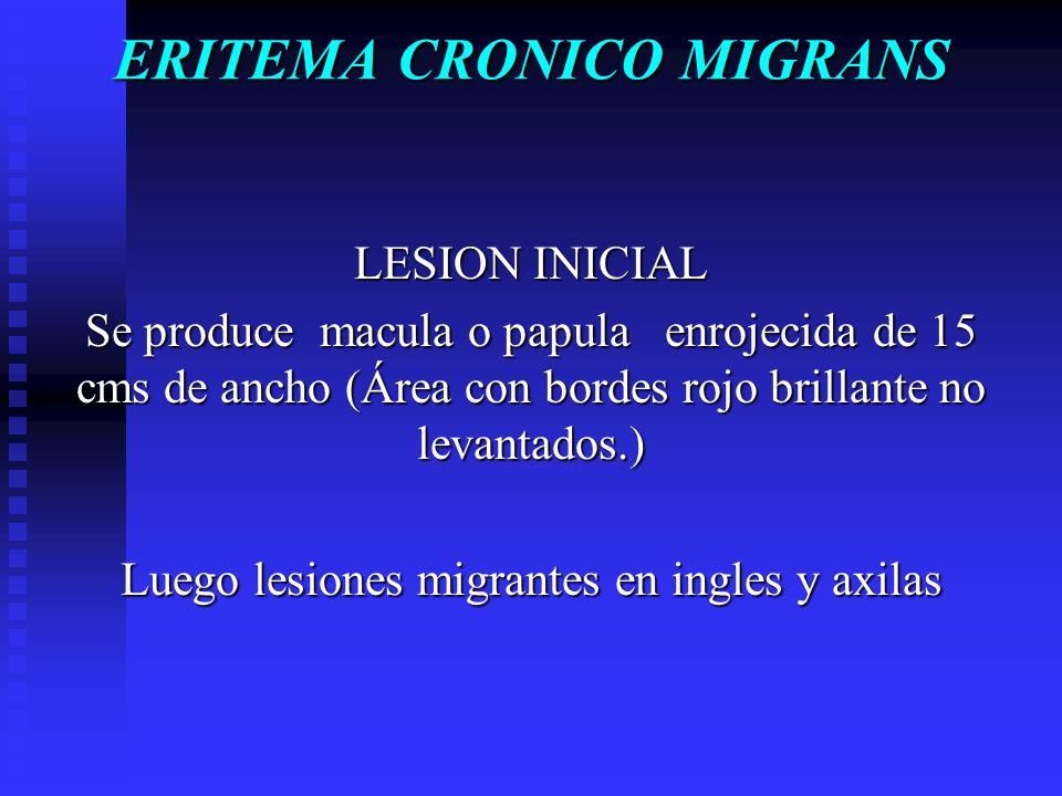 ERITEMA CRONICO MIGRANS