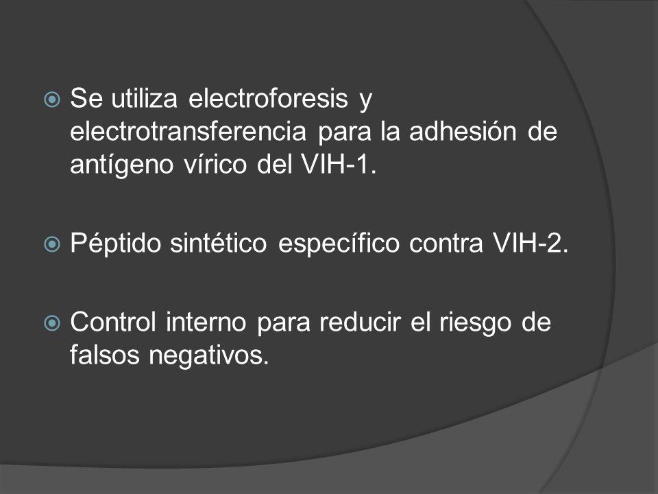 Se utiliza electroforesis y electrotransferencia para la adhesión de antígeno vírico del VIH-1.