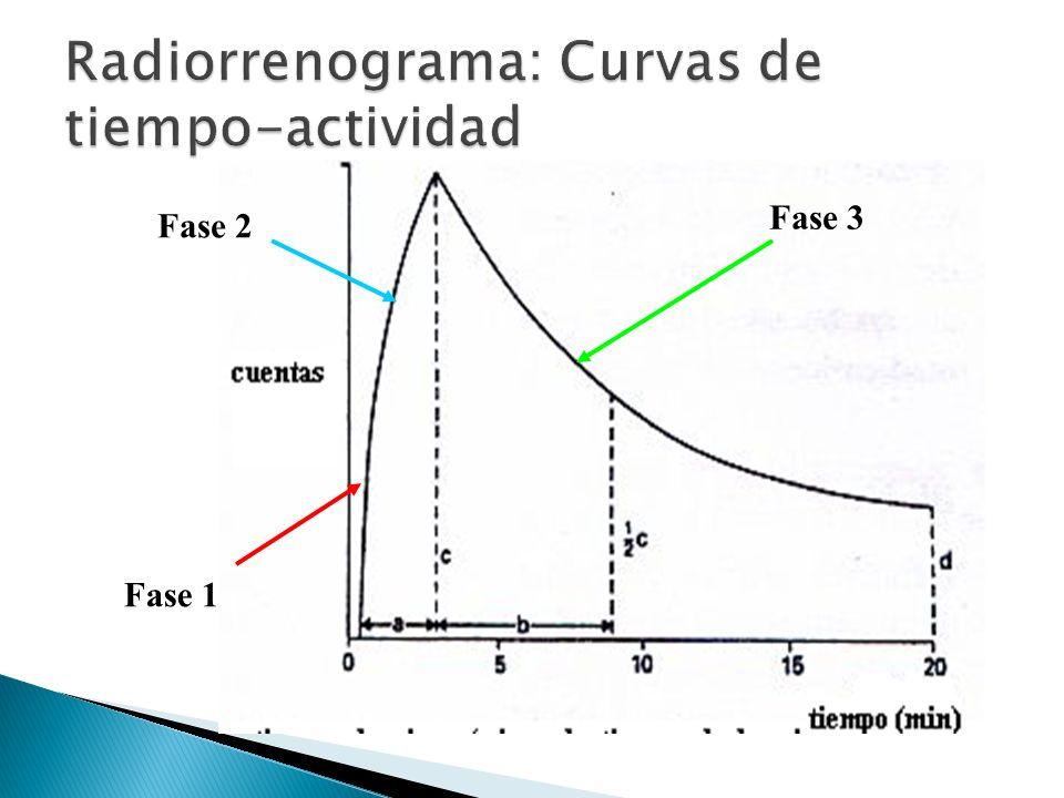 Radiorrenograma: Curvas de tiempo-actividad