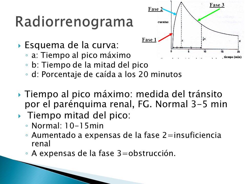 Radiorrenograma Esquema de la curva: