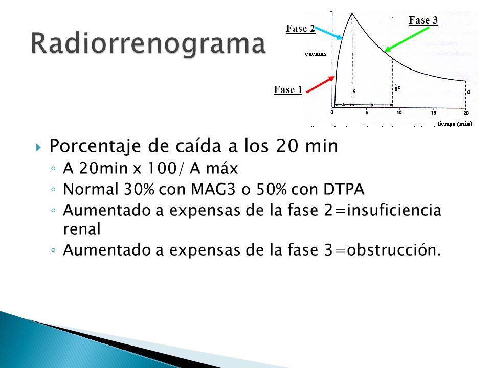 Radiorrenograma Porcentaje de caída a los 20 min A 20min x 100/ A máx