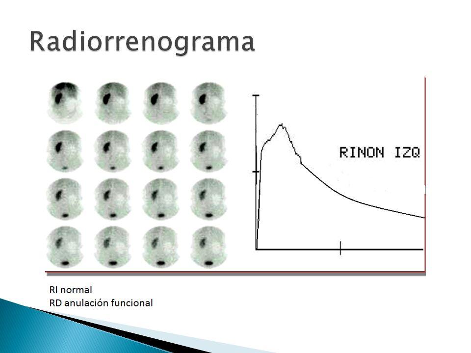 Radiorrenograma