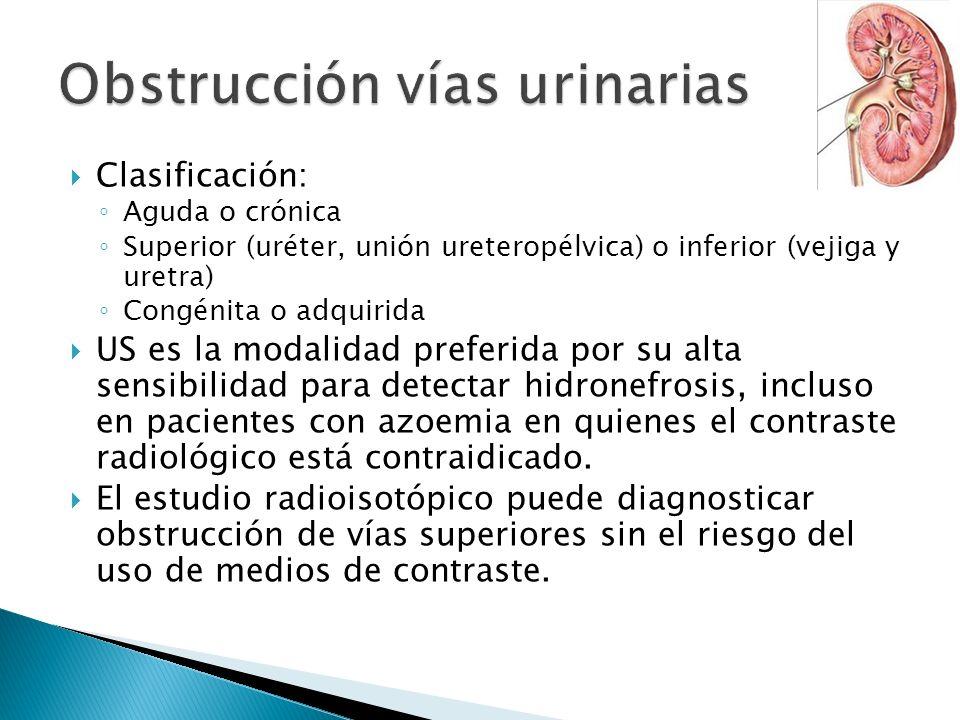 Obstrucción vías urinarias