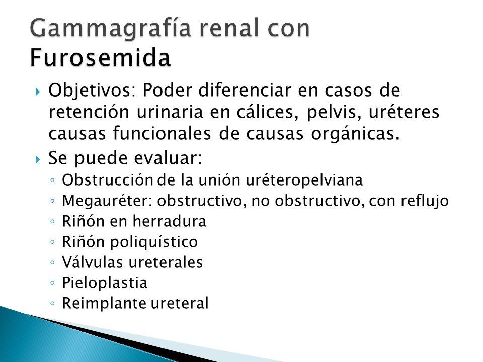 Gammagrafía renal con Furosemida