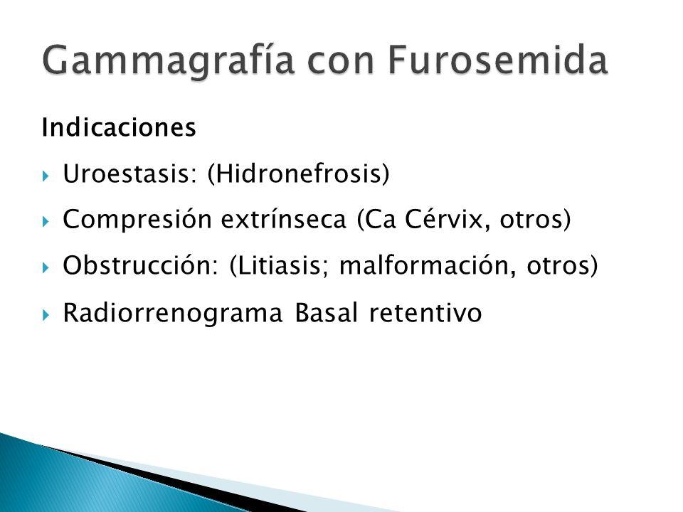 Gammagrafía con Furosemida