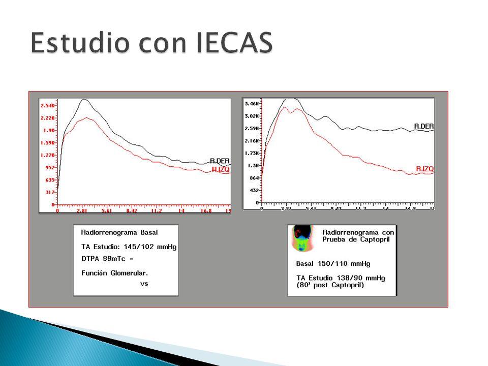 Estudio con IECAS