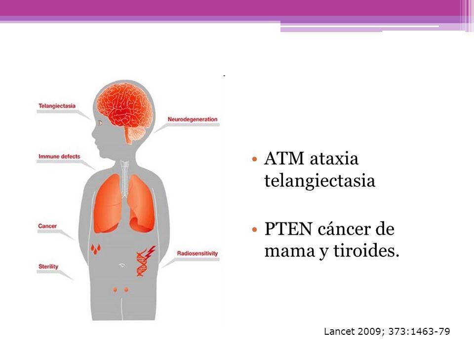 ATM ataxia telangiectasia