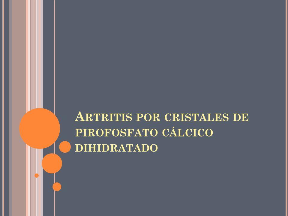 Artritis por cristales de pirofosfato cálcico dihidratado