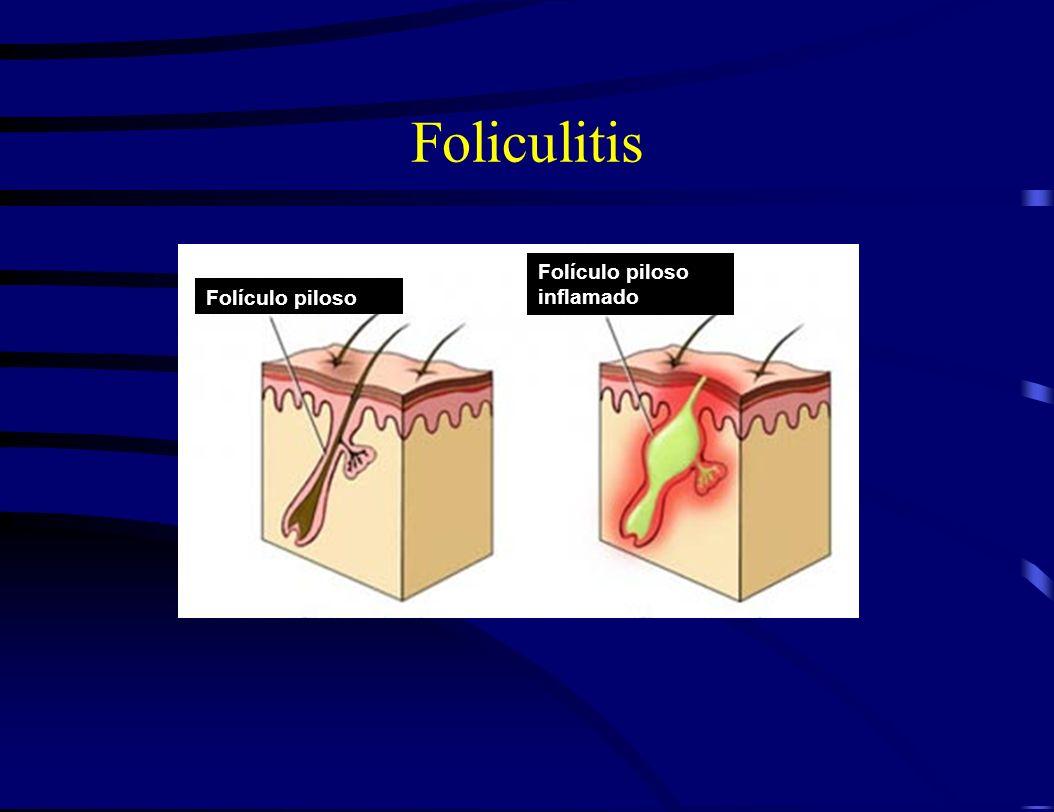 Foliculitis Folículo piloso inflamado Folículo piloso