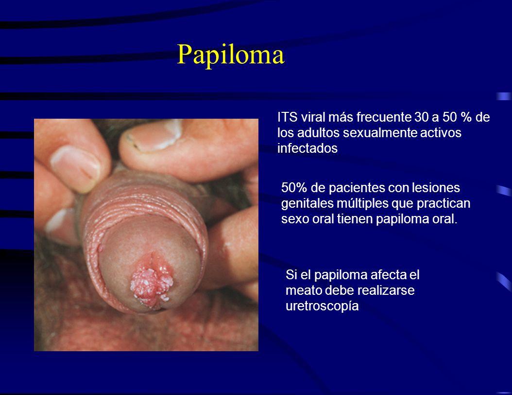 Papiloma ITS viral más frecuente 30 a 50 % de los adultos sexualmente activos infectados.