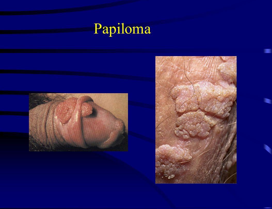 Papiloma