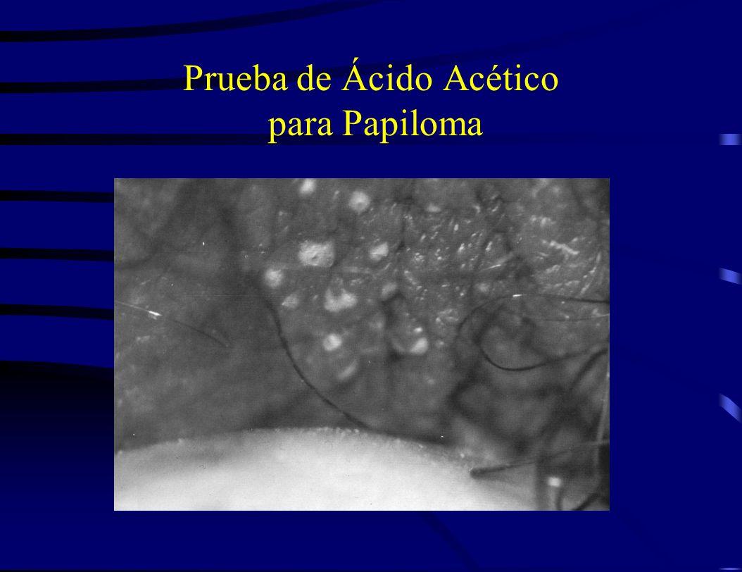Prueba de Ácido Acético para Papiloma