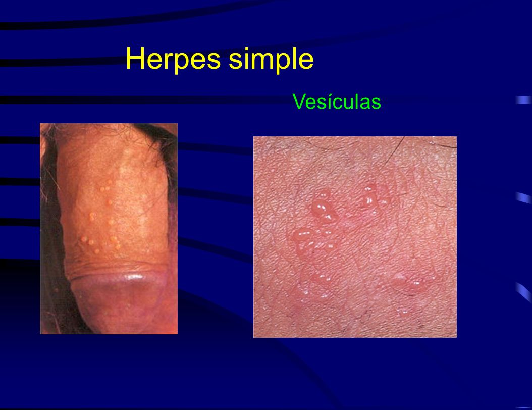 Herpes simple Vesículas Sexually transmitted diseases can present as: