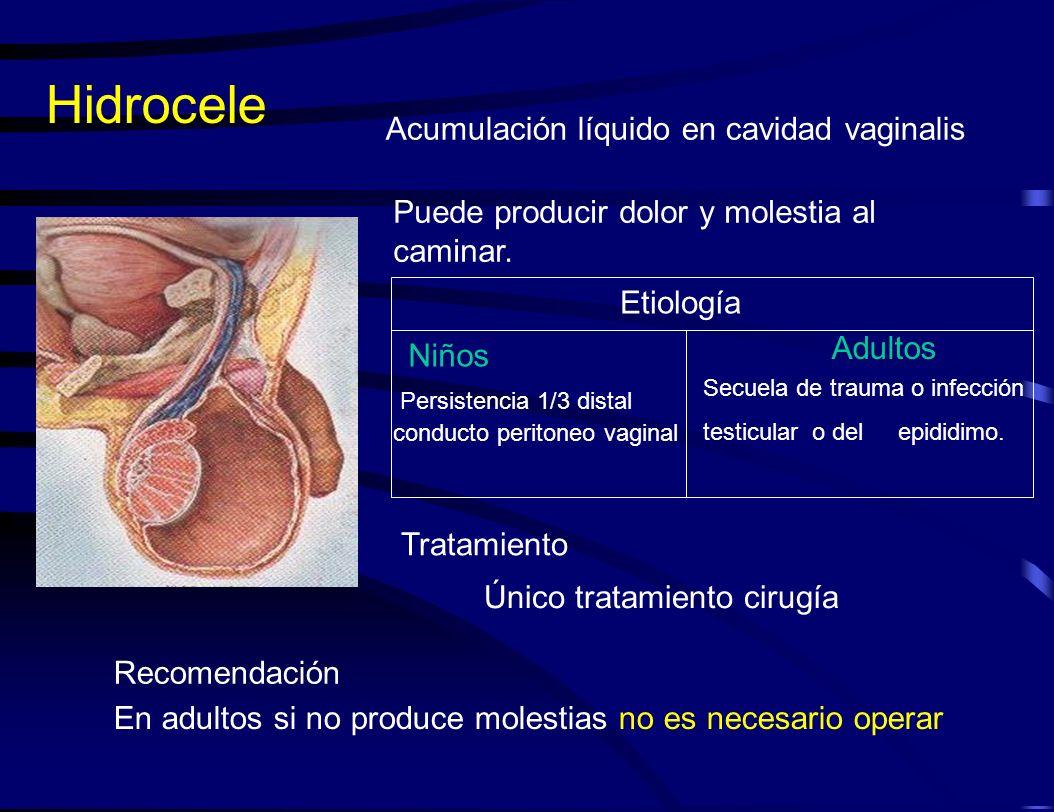 Hidrocele Acumulación líquido en cavidad vaginalis