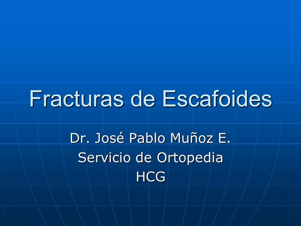 Fracturas de Escafoides