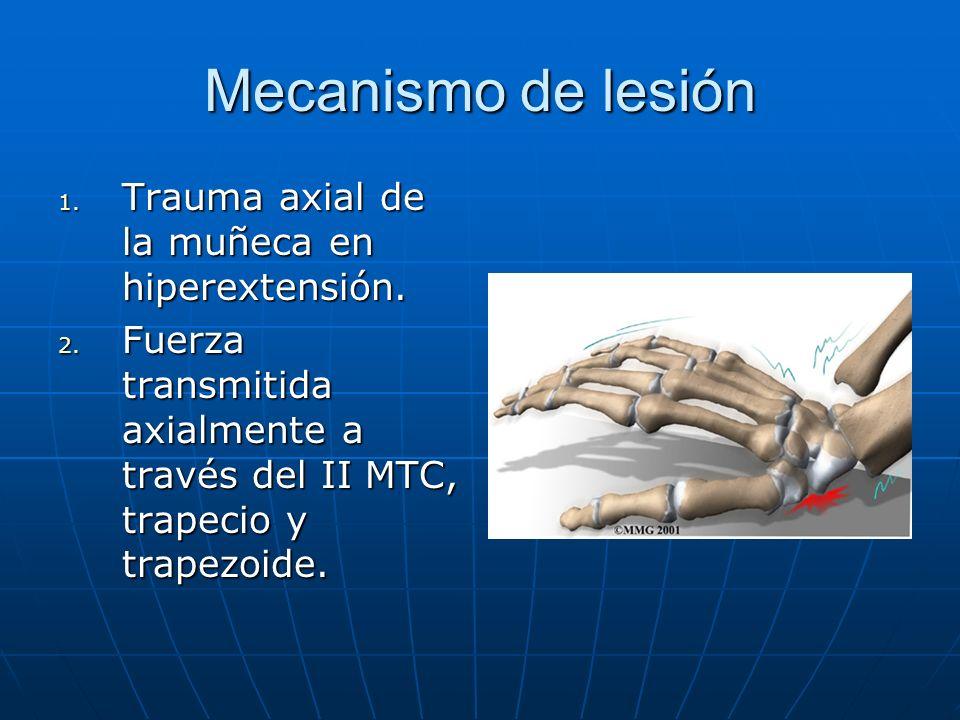 Mecanismo de lesión Trauma axial de la muñeca en hiperextensión.