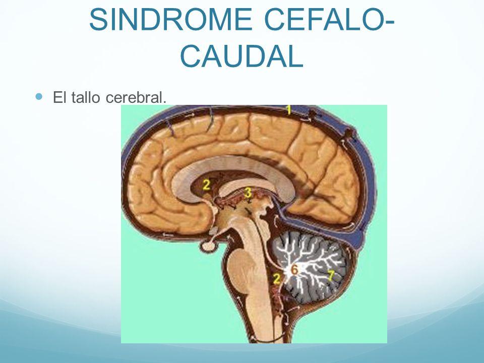 SINDROME CEFALO-CAUDAL