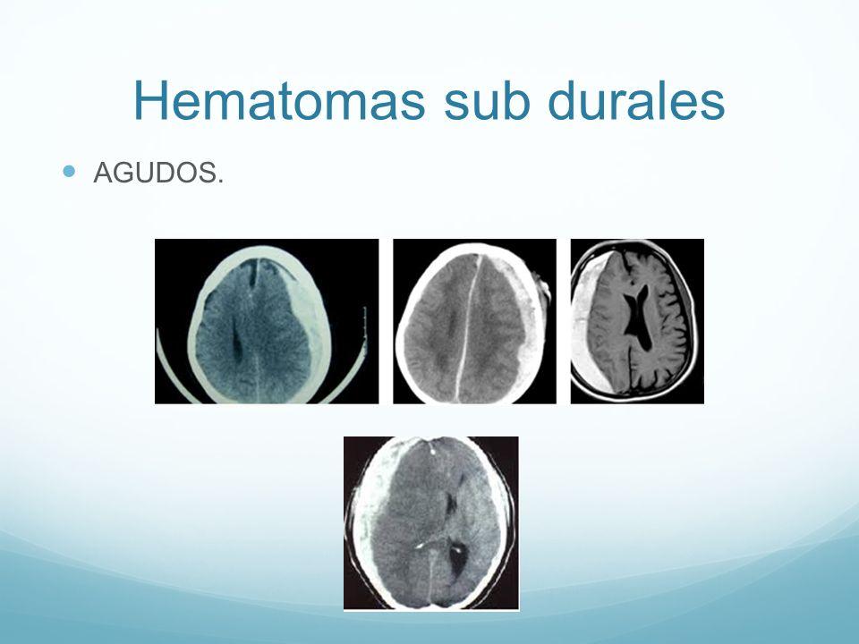 Hematomas sub durales AGUDOS.