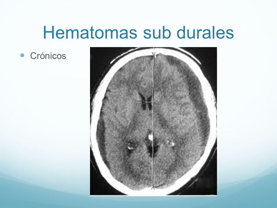 Hematomas sub durales Crónicos