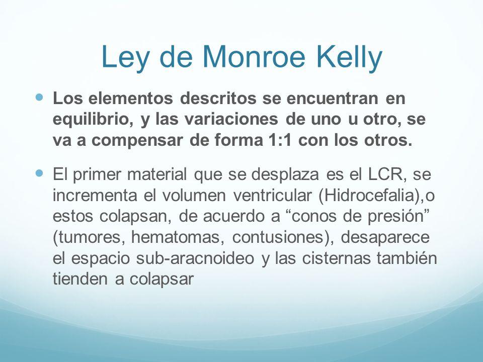 Ley de Monroe Kelly