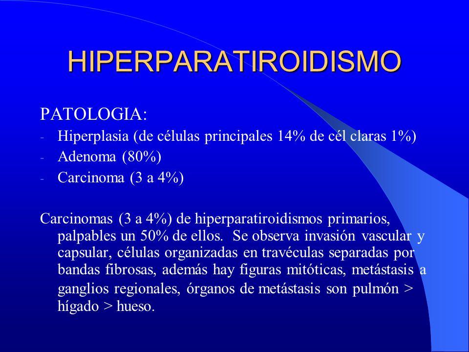 HIPERPARATIROIDISMO PATOLOGIA:
