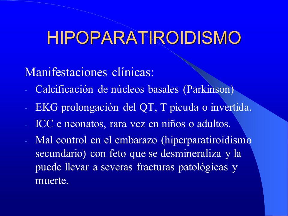 HIPOPARATIROIDISMO Manifestaciones clínicas: