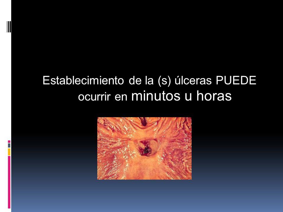 Establecimiento de la (s) úlceras PUEDE ocurrir en minutos u horas