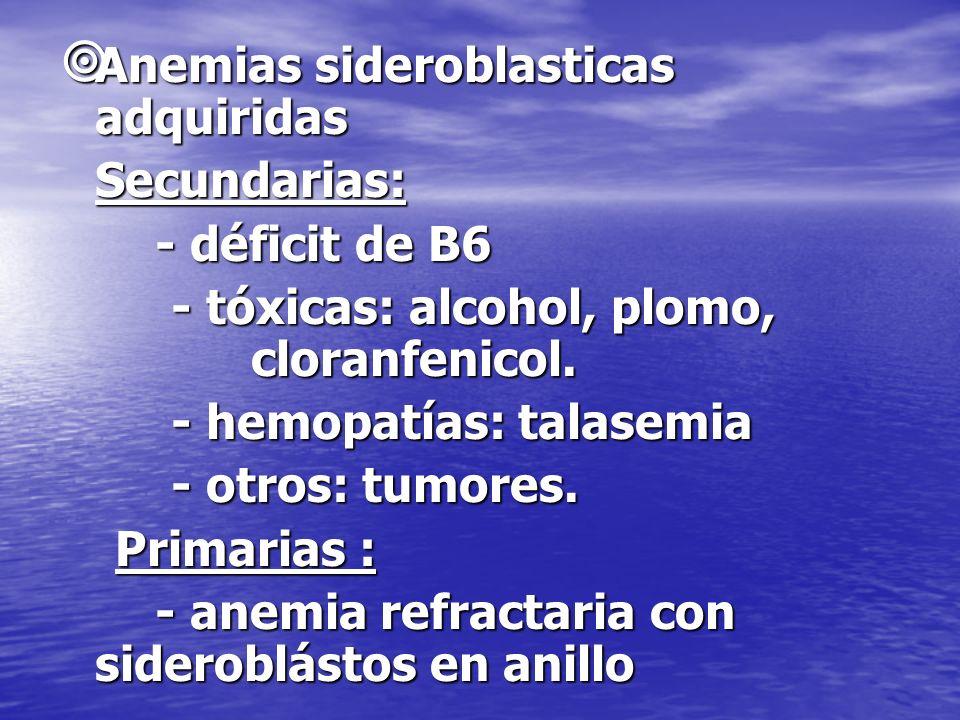Anemias sideroblasticas adquiridas