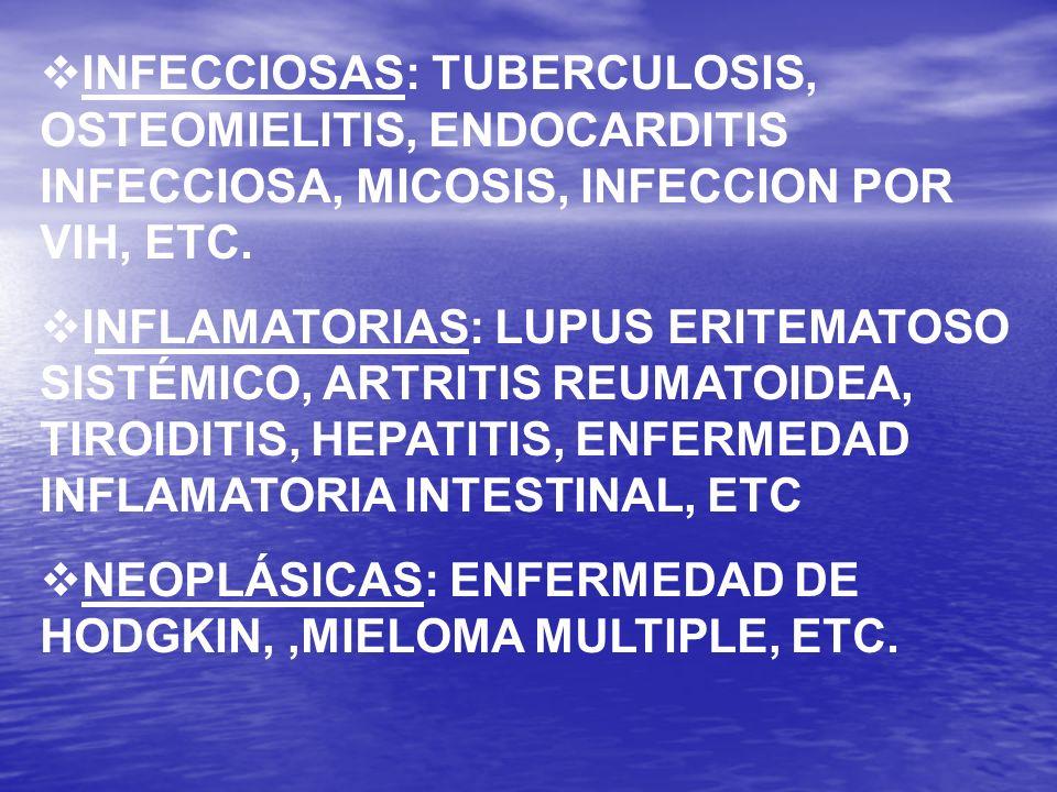 INFECCIOSAS: TUBERCULOSIS, OSTEOMIELITIS, ENDOCARDITIS INFECCIOSA, MICOSIS, INFECCION POR VIH, ETC.