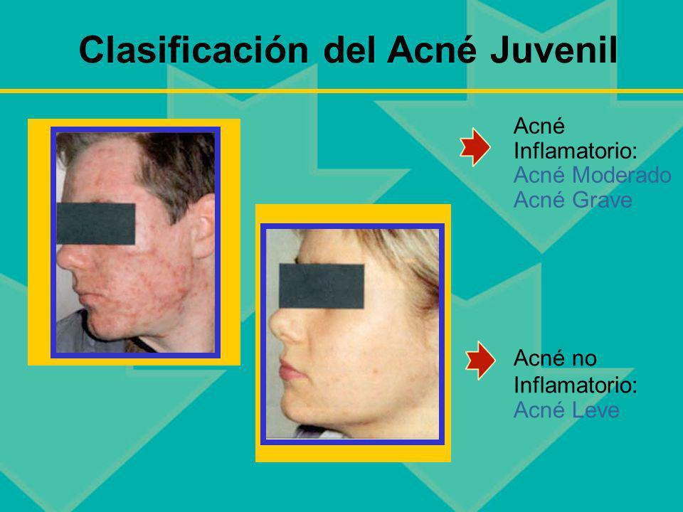 Clasificación del Acné Juvenil