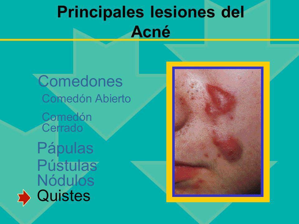 Principales lesiones del Acné