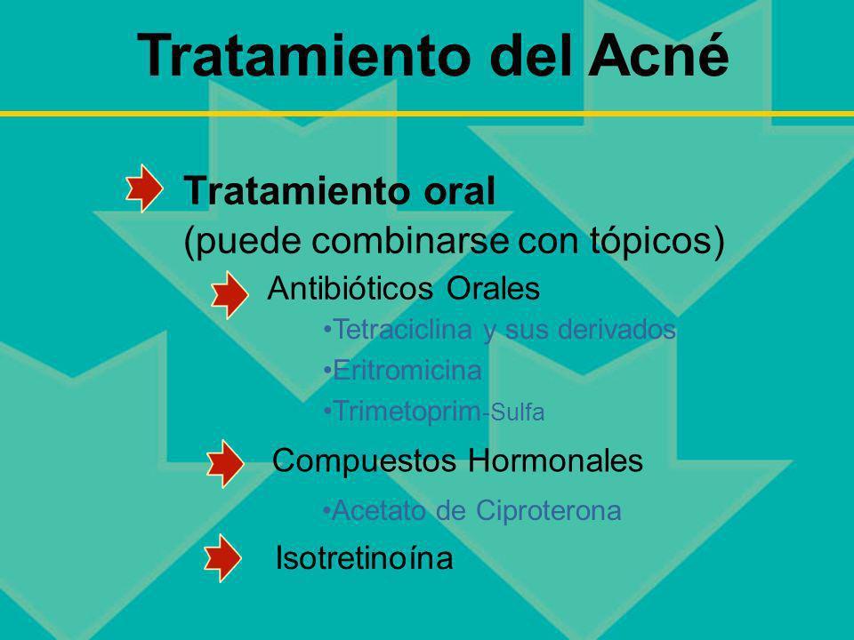 Tratamiento del Acné Tratamiento oral (puede combinarse con tópicos)