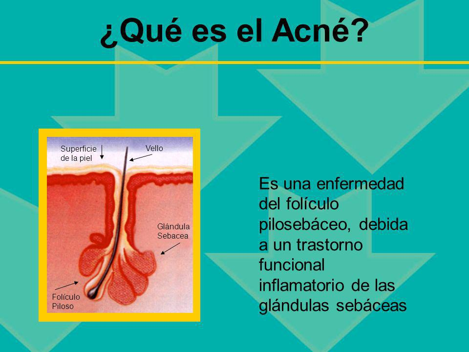 ¿Qué es el Acné Superficie de la piel. Vello.