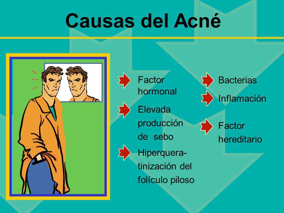 Causas del Acné Factor hormonal Bacterias Inflamación Elevada
