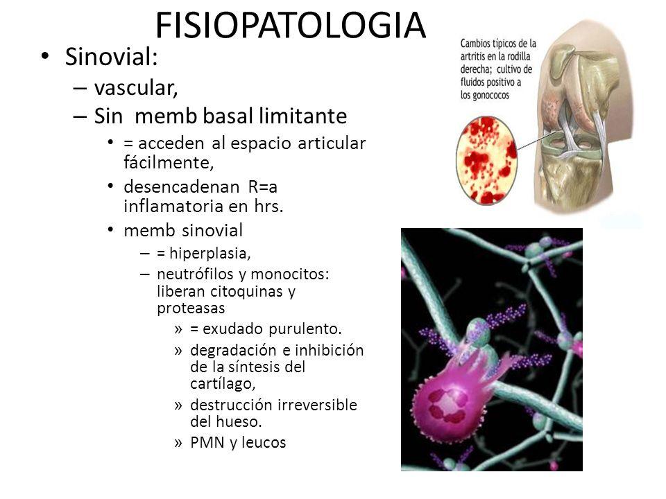 FISIOPATOLOGIA Sinovial: vascular, Sin memb basal limitante