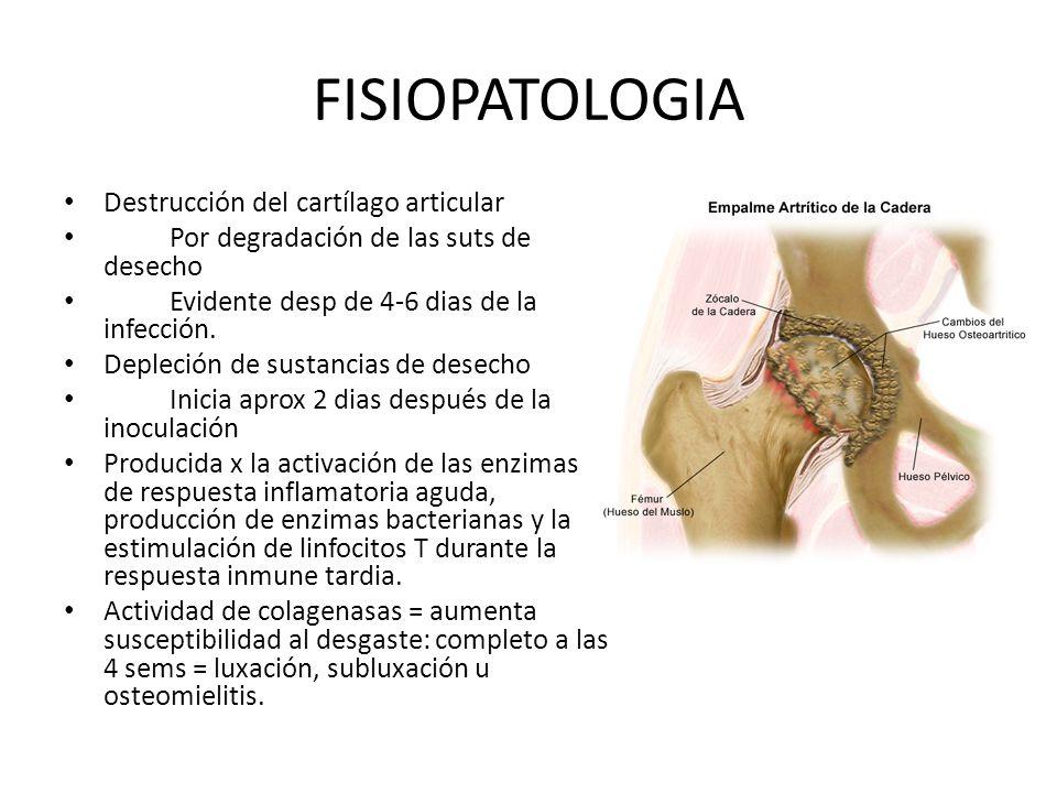 FISIOPATOLOGIA Destrucción del cartílago articular