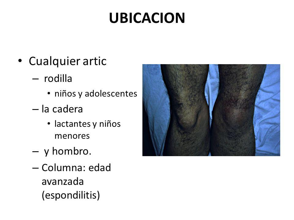 UBICACION Cualquier artic rodilla la cadera y hombro.