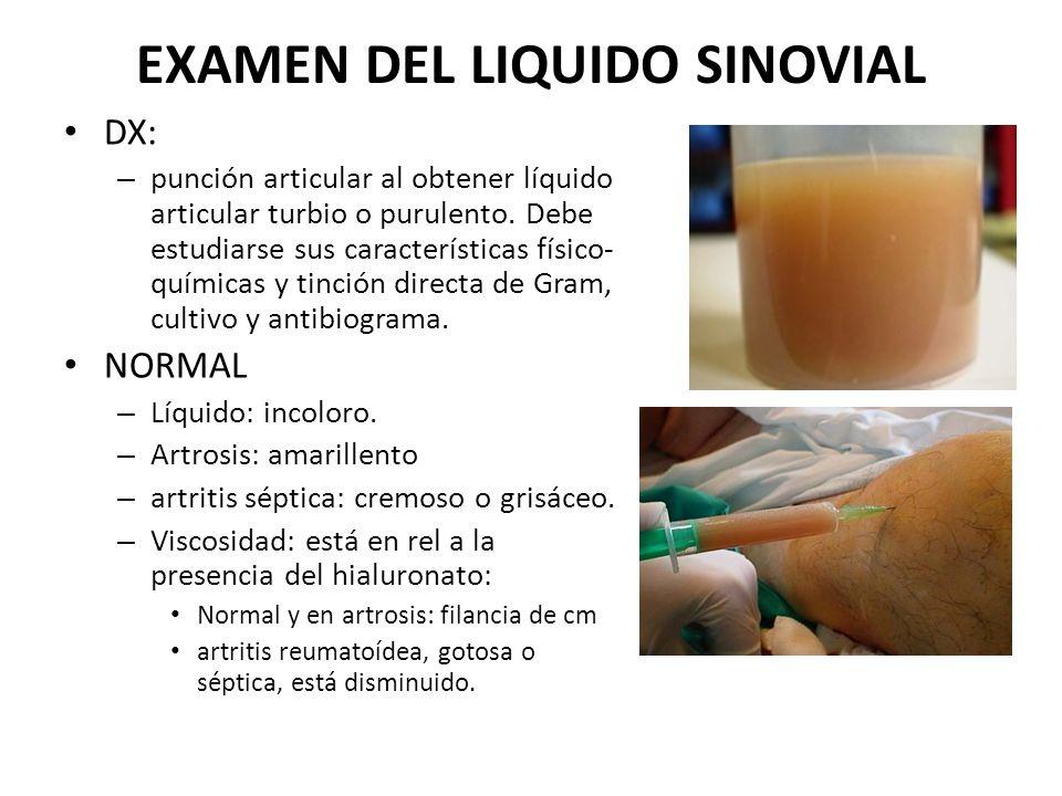 EXAMEN DEL LIQUIDO SINOVIAL