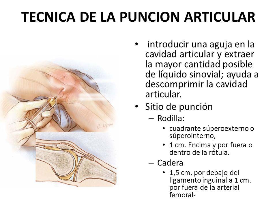TECNICA DE LA PUNCION ARTICULAR