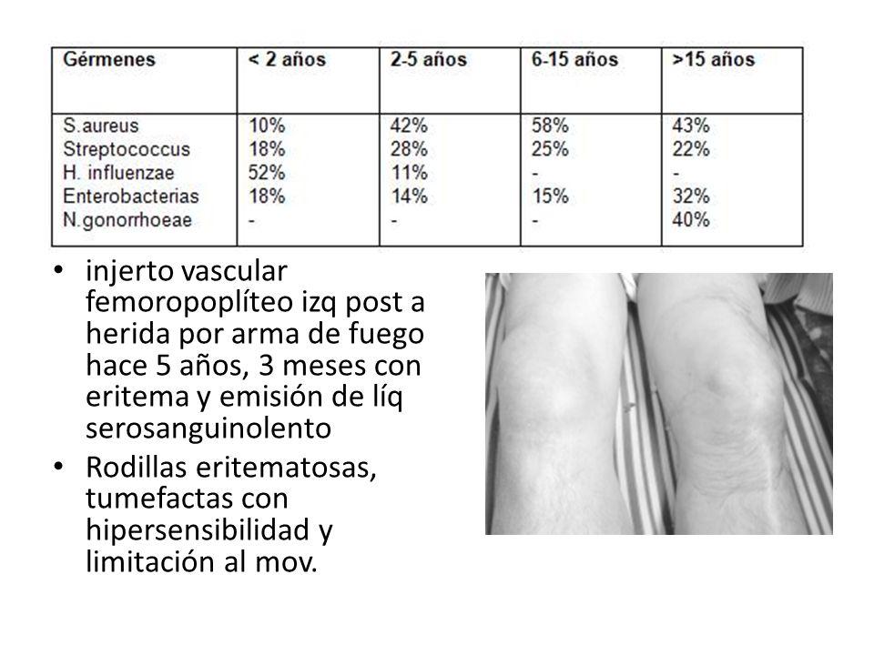 injerto vascular femoropoplíteo izq post a herida por arma de fuego hace 5 años, 3 meses con eritema y emisión de líq serosanguinolento