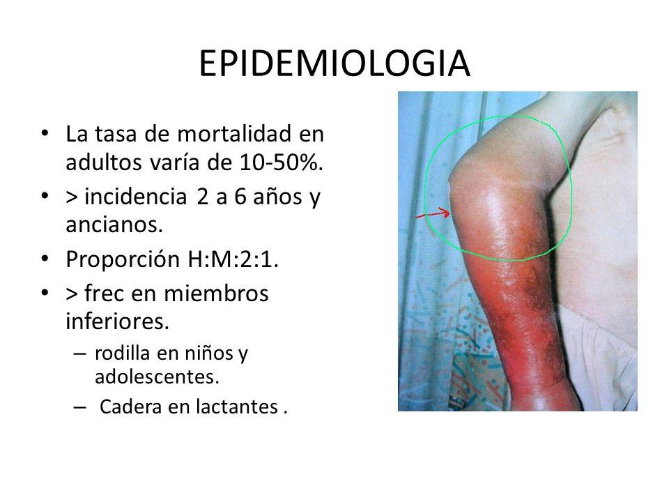 EPIDEMIOLOGIA La tasa de mortalidad en adultos varía de 10-50%.