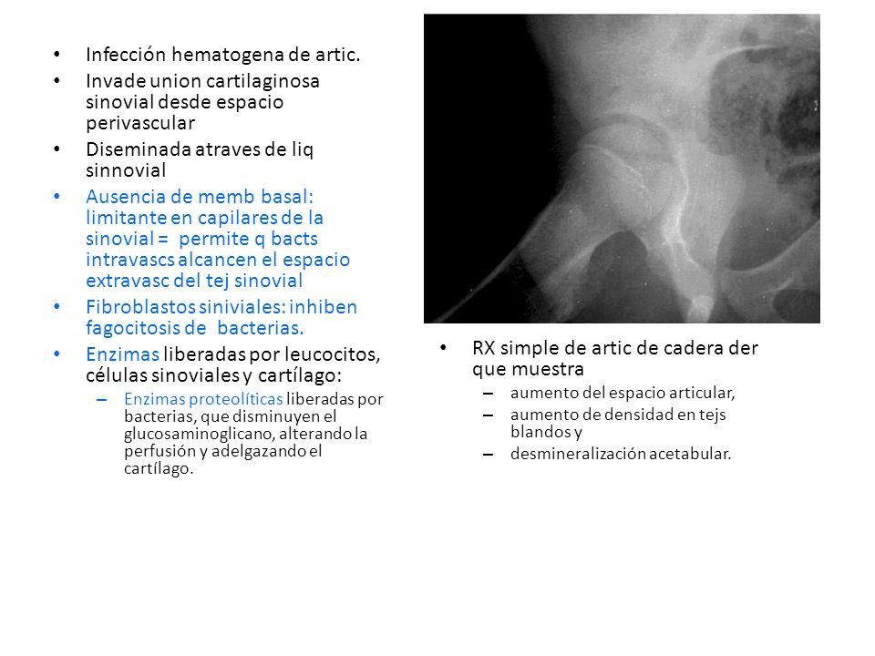 PROTEASAS PEPTIDASAS COLAGENASAS Infección hematogena de artic.