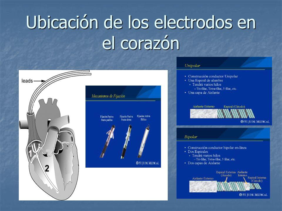 Ubicación de los electrodos en el corazón